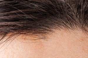 hair transplant in Cleveland OH