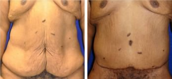 Patient before & after tummy tuck (abdominoplasty) in Cleveland, OH