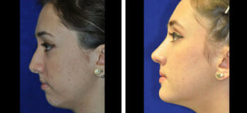 Patient before & after rhinoplasty in Cleveland, OH