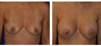 Before and After Breast Augmentation with Implants in Cleveland, OH