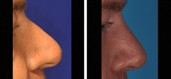 Westlake, OH patient before and after Rhinoplasty