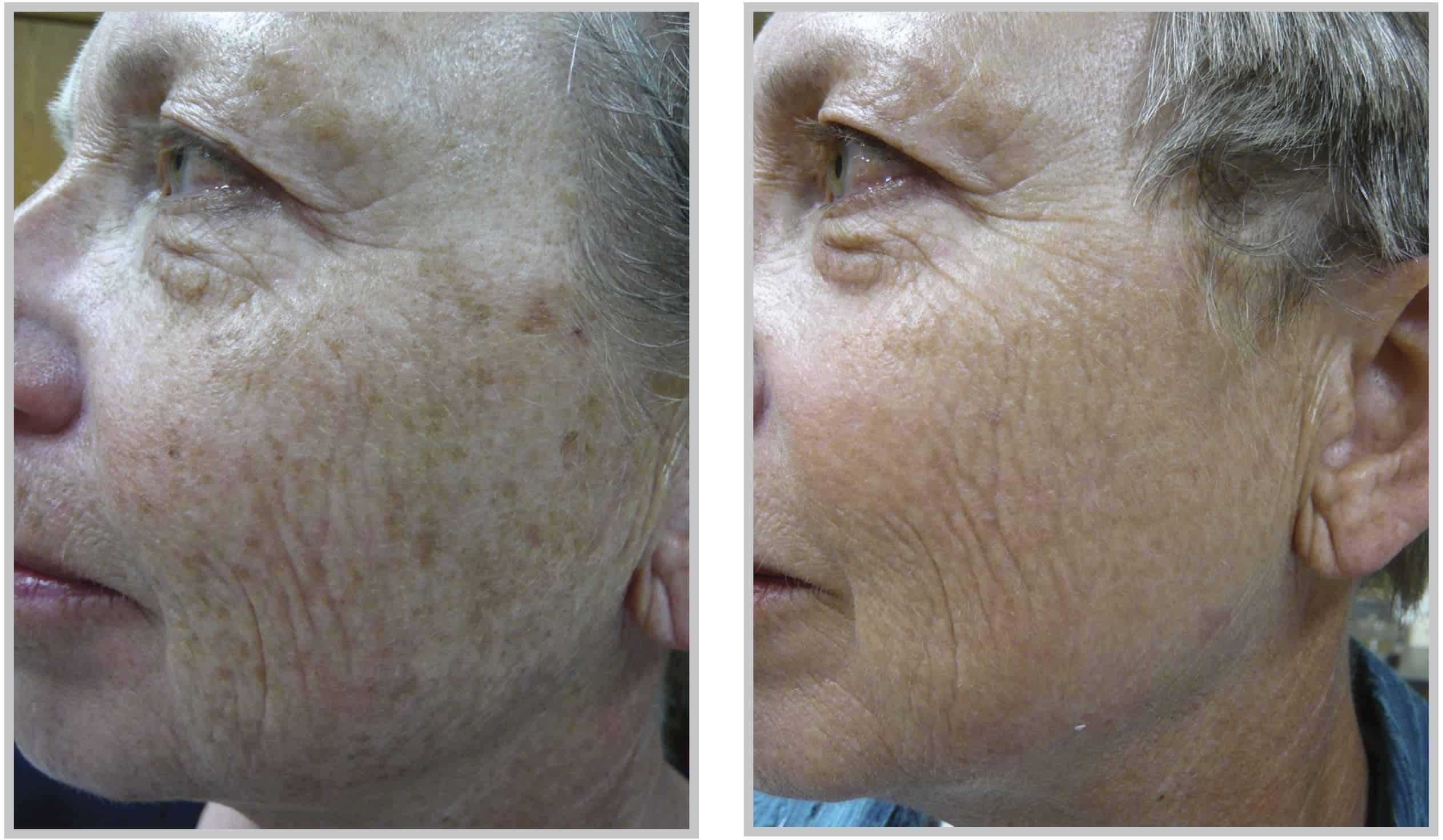 Bbl Skin Treatment Cleveland Rosacea Light Treatment