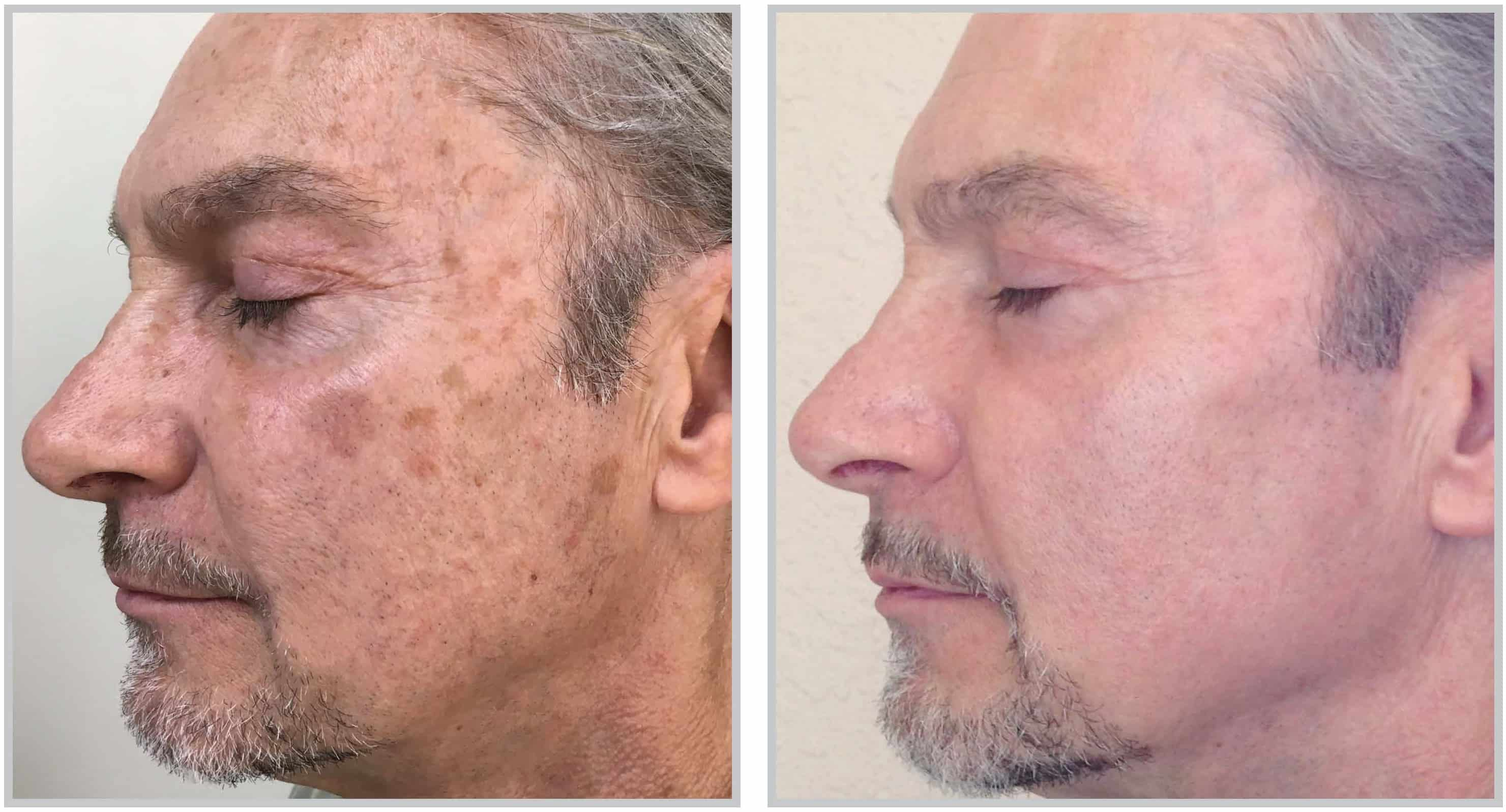 Cleveland Halo Skin Rejuvenation patient before and after