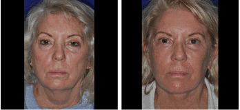 Cleveland Facelift Patient Before & After Photos