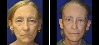 Patient Before & After Facelift in Cleveland, OH