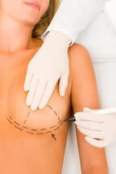 Breast Reconstruction in Cleveland, OH