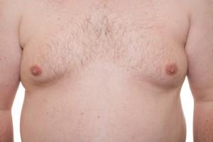 gynecomastia Cleveland
