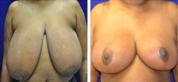 Cleveland, OH breast reduction patient before and after mammoplasty