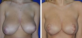 Westlake, OH breast reduction patient before & after mammoplasty in Cleveland, OH