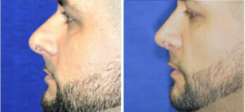 Male nose surgery patient, Westlake OH