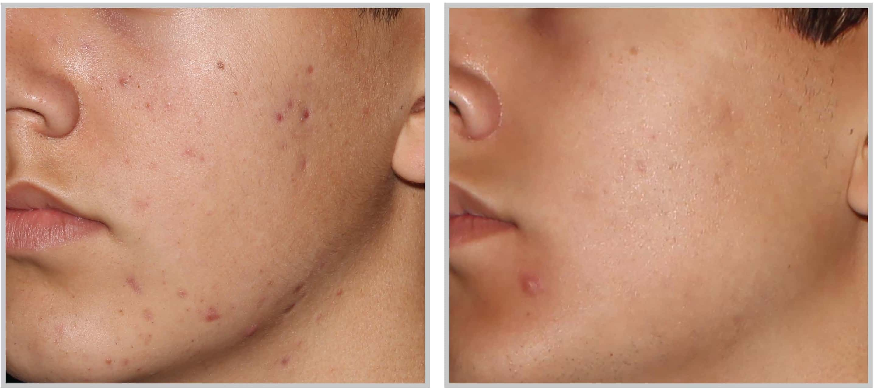 Cleveland Patient before & after BBL Acne Treatment