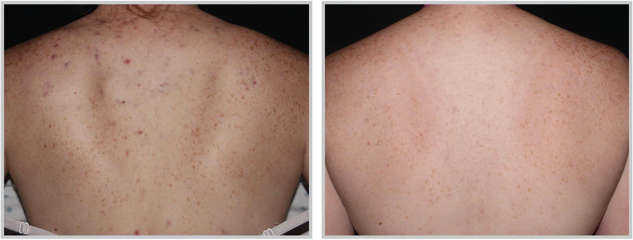 BBL Light Acne Treatment in Cleveland