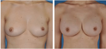 Cleveland Breast Augmentation Patient before & after