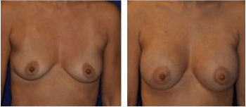 Breast Augmentation Cleveland, OH Patient