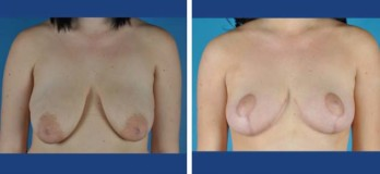 Before an after breast lift